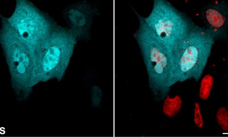 Class of proteins involved in essential cell functions has an unexpected role scientists discover
