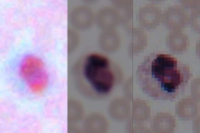 Deep learning transforms smartphone microscopes into laboratory grade devices