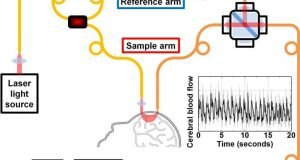 New technology for measuring brain blood flow with light
