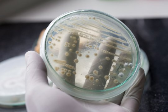 Yeast engineered to manufacture complex medicine