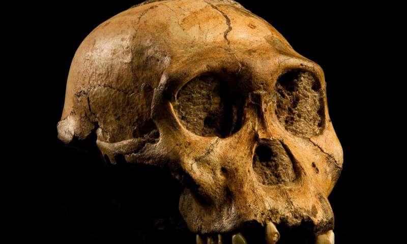 Genetic error led humans to evolve bigger but more vulnerable brains