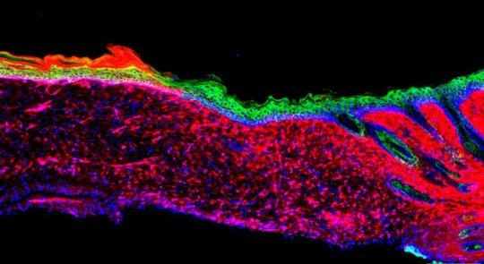 The alchemy of healing Researchers turn open wounds into skin
