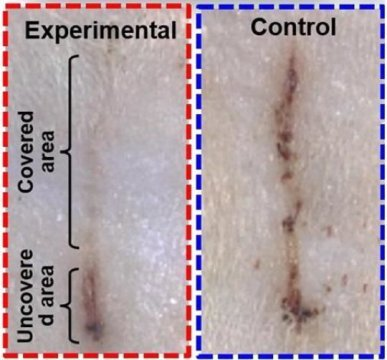 E bandage generates electricity speeds wound healing in rats