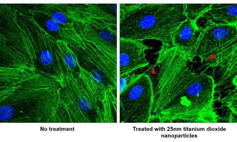 Nanoparticles may promote cancer metastasis