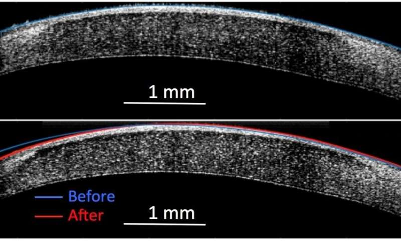 Molecular surgery reshapes living tissue with electricity but no incisions
