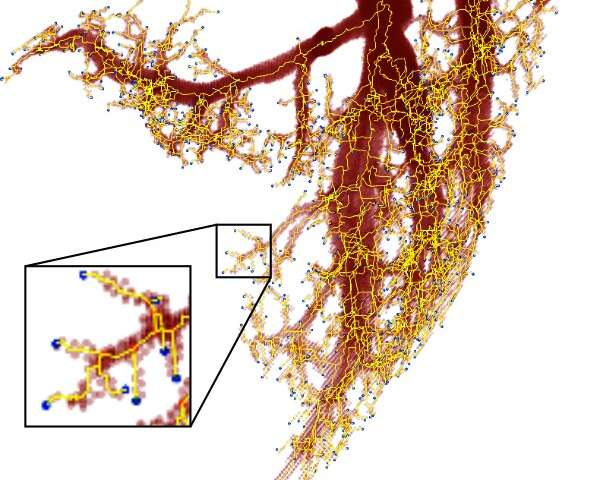 Researchers find a better power law that predicts earthquakes blood vessels bank accounts