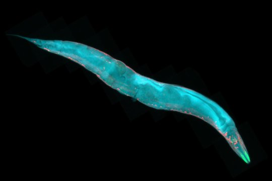 Research on repetitive worm behavior may have implications for understanding human disease
