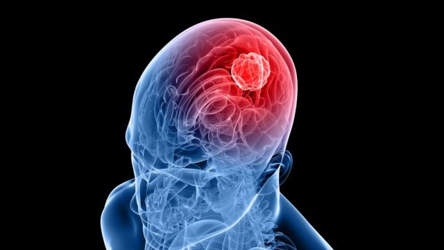 cropped Delivering immunotherapy directly to brain tumor