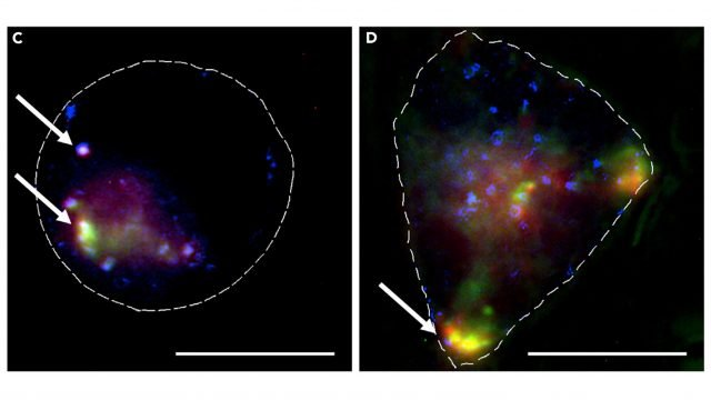 cropped Nanoparticles used to transport anti cancer agent to cells