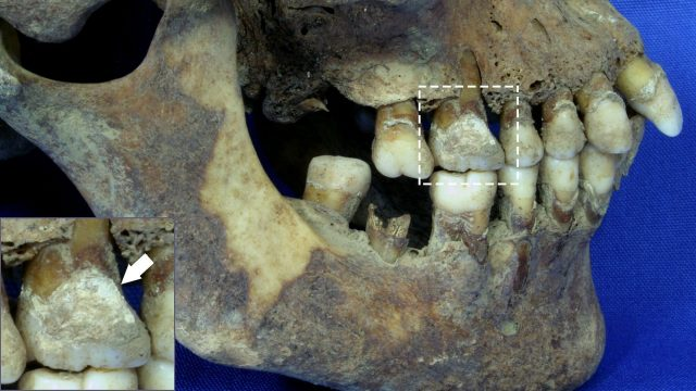 cropped Teeth offer vital clues about diet during the Great Irish Famine