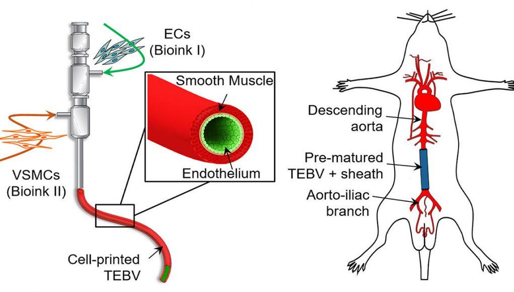 3 D printing bioinks create implantable blood vessels
