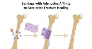 Bone bandage soaks up pro healing biochemical to accelerate repair