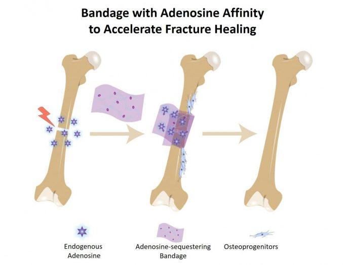 Bone bandage soaks up pro healing biochemical to accelerate repair