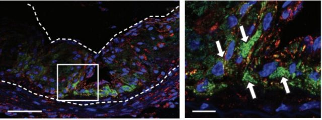 Nanoparticle chomps away plaques that cause heart attacks
