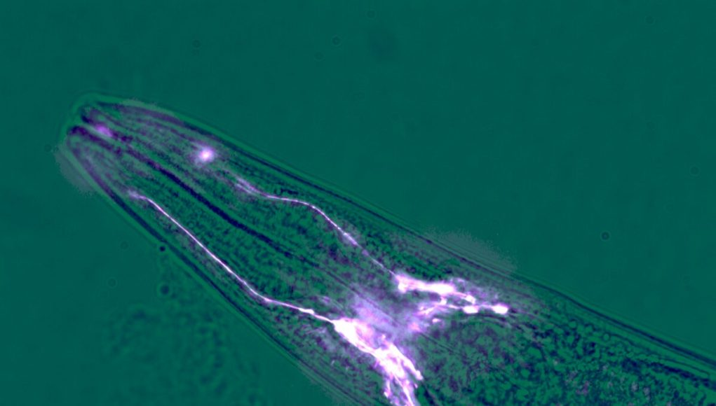 Brain cells protect muscles from wasting away