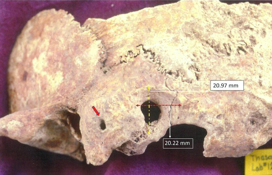 Researcher discovers early complex brain surgery in ancient Greece
