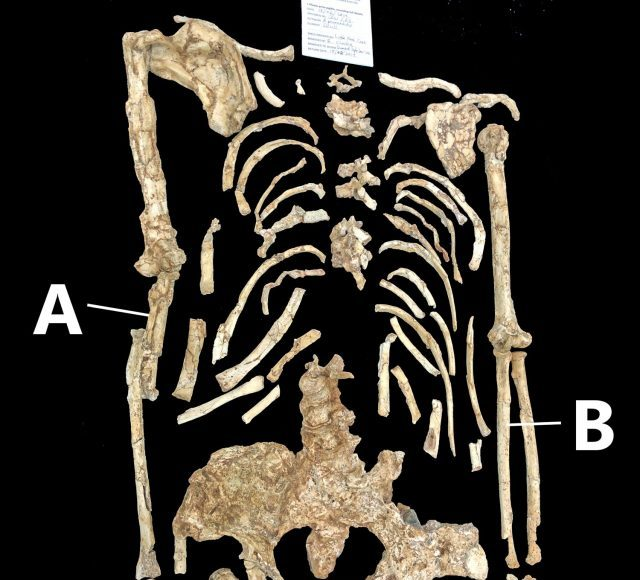 Is forearm curvature in the Little Foot Australopithecus natural or pathological