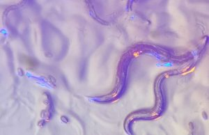 Roundworms read wavelengths in the environment to avoid dangerous bacteria that secrete colorful toxins